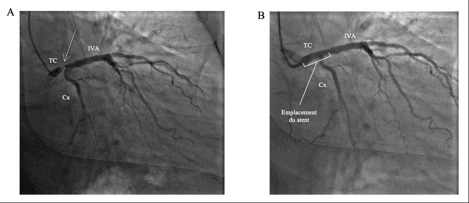 Exemple d'angioplastie du tronc commun gauche distal