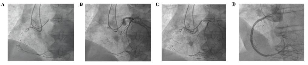 CTO de la coronaire droite proximale