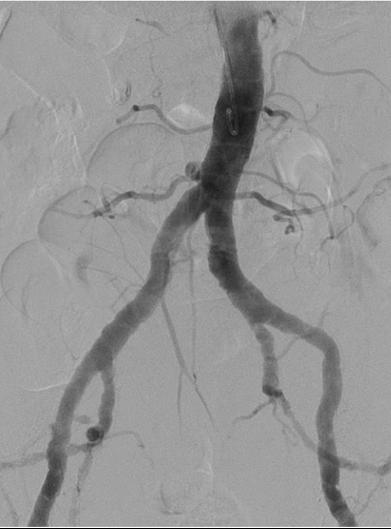 Artériographie de l'aorte abdominale et des membres inférieurs