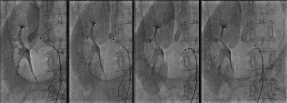 Procédure de dénervation de l'artère rénale droite