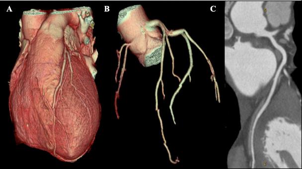 Example of coronary CT
