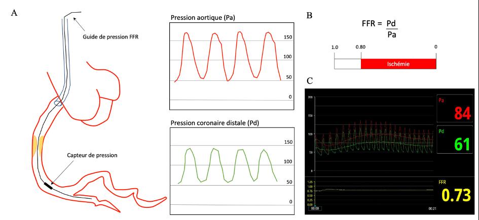 Figure illustrant le principe de la FFR dans une artère coronaire avec sténose intermédiaire