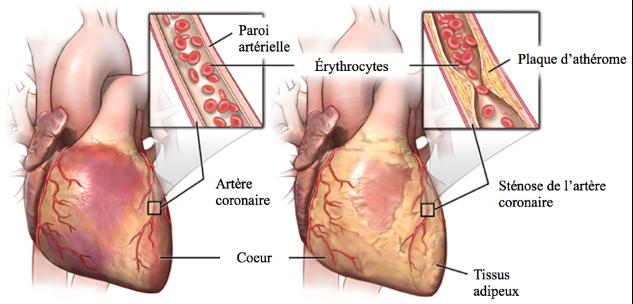 Sténose coronarienne
